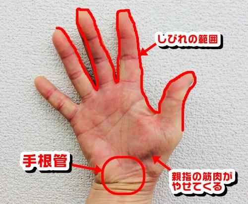 手根管症候群の手術後の後遺症