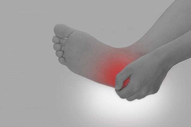 足底筋膜炎の足の裏や土ふまず、かかとの痛み