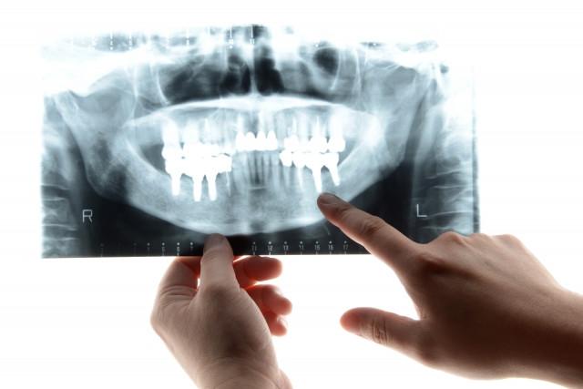 顎関節症のレントゲン