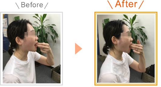 顎関節症のビフォーアフター