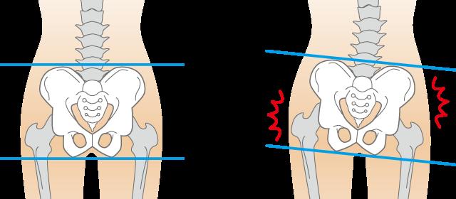 肋間神経痛の原因の背骨のゆがみ