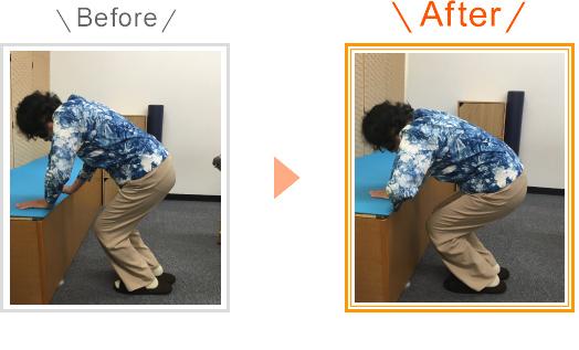 変形性膝関節症のビフォーアフター