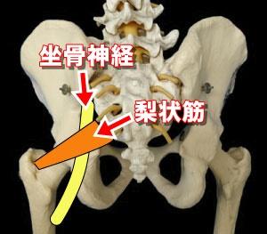 梨状筋症候群の説明画像