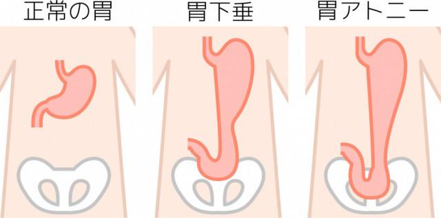 胃下垂の状態