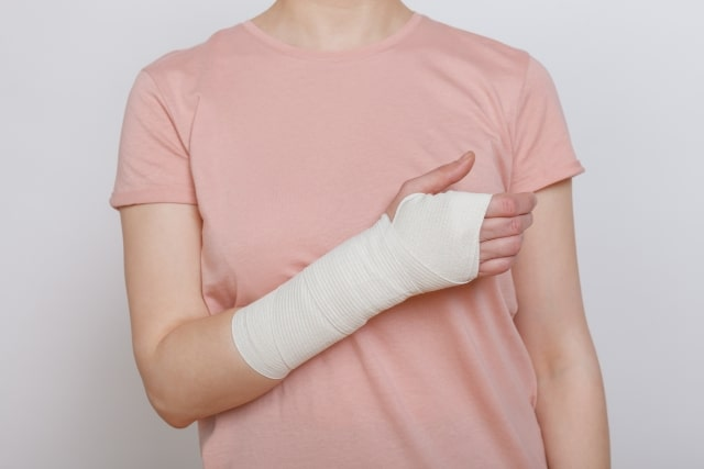 腕の骨折の画像