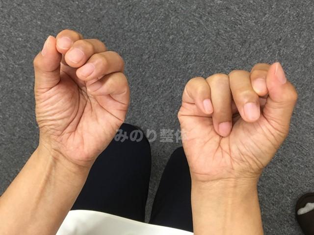 ヘバーデン結節で手が握れない画像