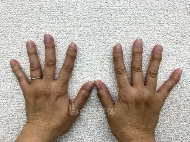ヘバーデン結節 軽症の画像